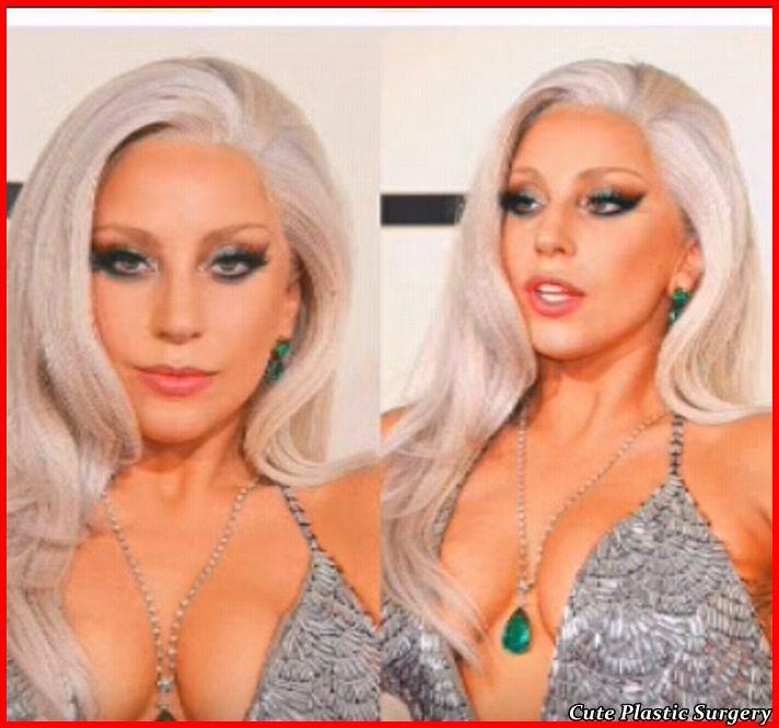 Lady Gaga After Surgery