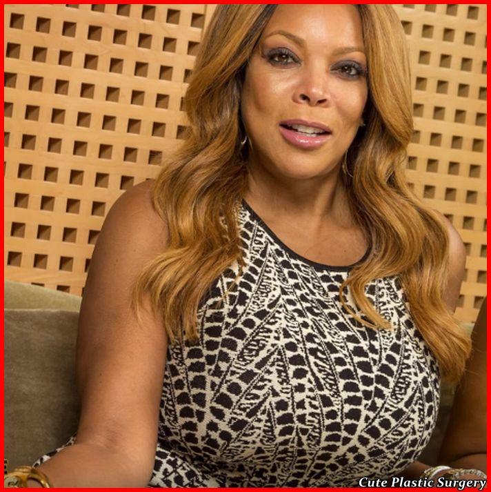 Wendy Williams Plastic Surgery Celebrities Plastic Surgery