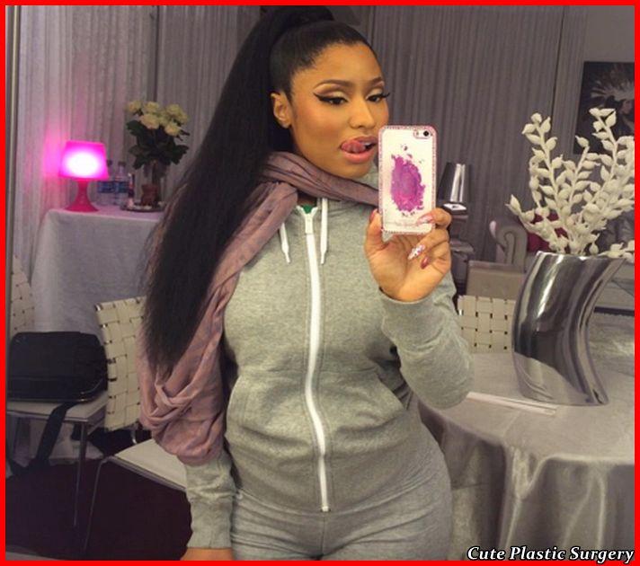 Nicki Mina Plastic Surgery Pictures Celebrities Plastic